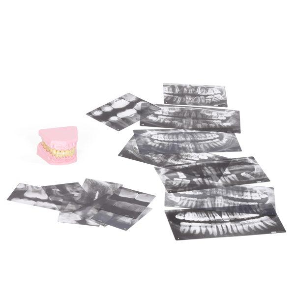 Set of Teeth & X-Rays